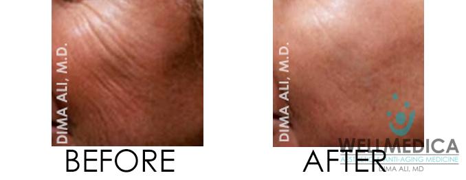 Venus Viva Before and After Laser Resurfacing Alternative Reston VA