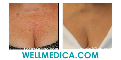 Treating Facial and Chest Sun Damage Before and After