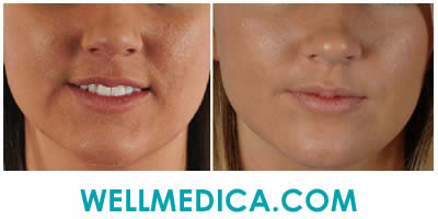 Microdermabrasion VS Vibradermabrasion Treatment Before and After