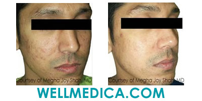 Facial Sundamage and Chest Before and After