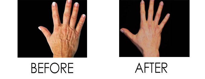 Bellafil to Prevent Aging Hands