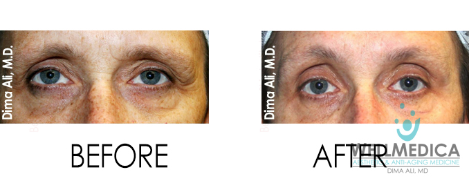 Thermismooth for eyes before and after