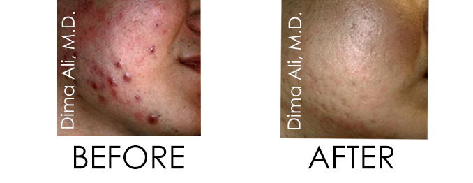 photodynamic therapy before and after treatment