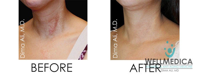 scar removal before and after in Washington DC near Reston, VA