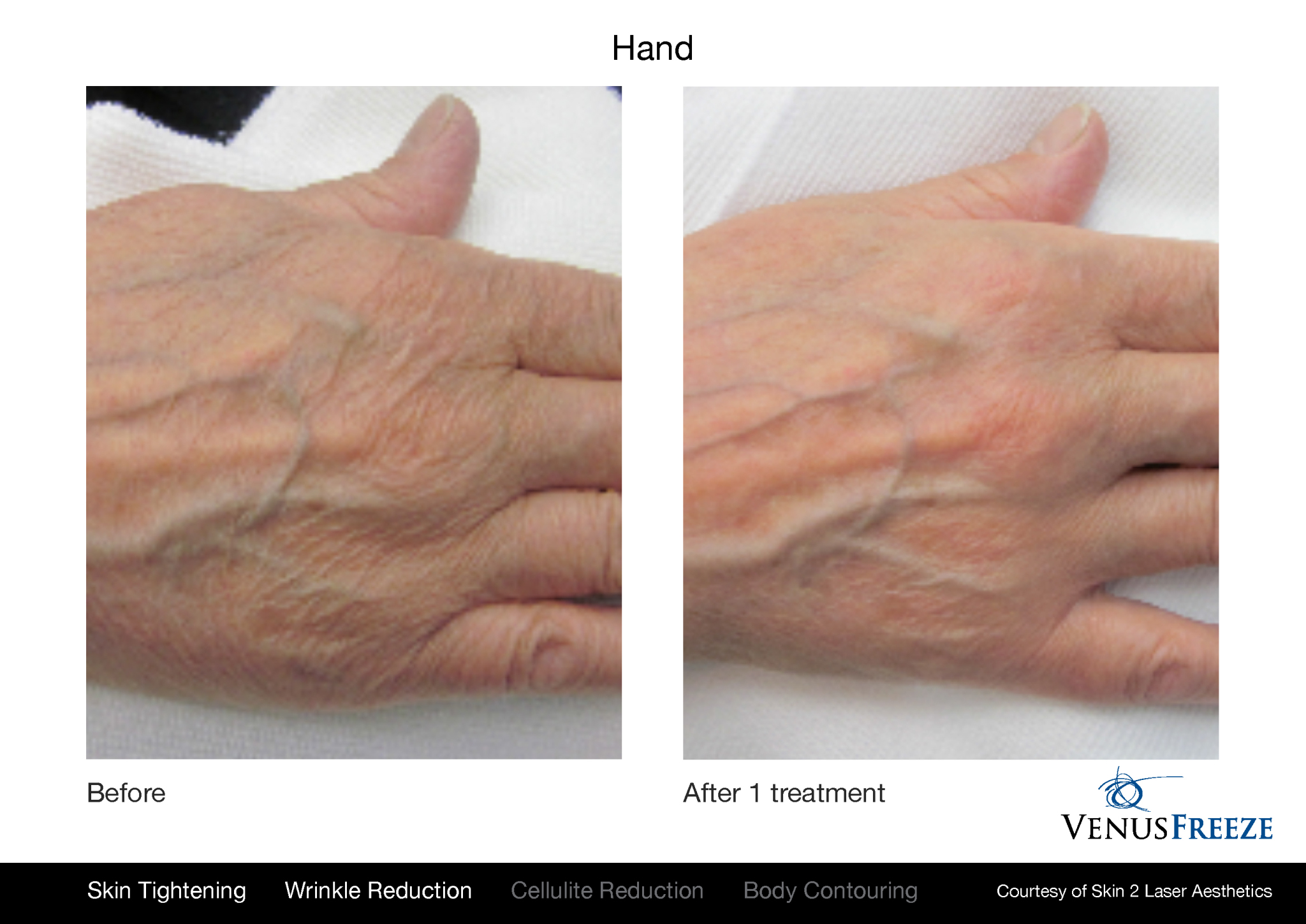 Prevent Aging Hands with Venus Freeze