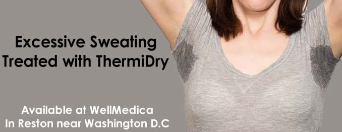 ThermiDry excessive sweating solution near Washington DC