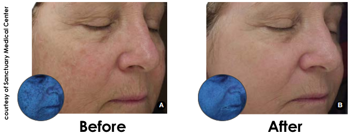 Halo hybrid fractional laser before and after - Reston, Washington D.C