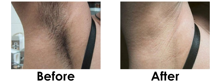 unwanted hair Washington D.C before and after
