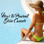 How to Prevent Skin Cancer tips melanoma