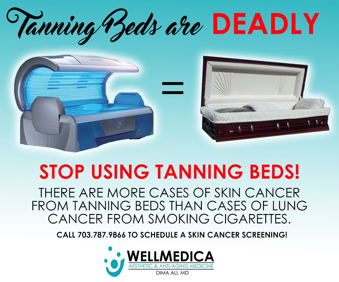 melanoma may coffin dangers of tanning beds wellmedica dr dima