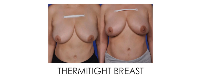 best non-surgical breast lift thermitight breast procedure