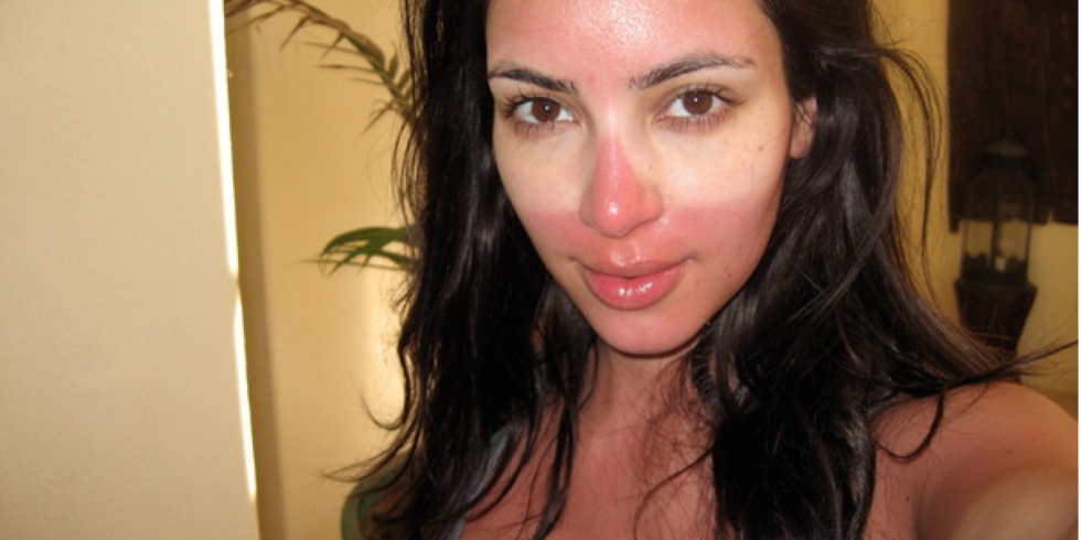 How to prevent sunburn kim kardashian dr. dima