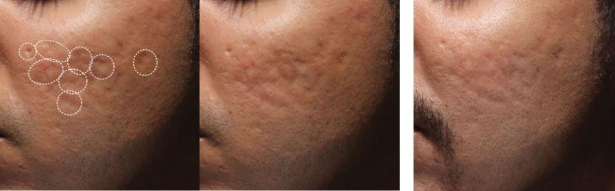 Bellafill for Acne Scars Treatment Reston VA Dr. Dima Ali