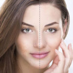 Bellafill for Acne Scars Treatment Washington D.C. Reston VA