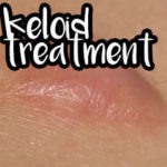 keloid scar treatment with lasers dr. dima wellmedica