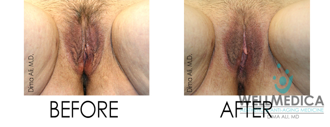 body changes after pregnancy vaginal looseness and incontinence treatment with thermiva before and after