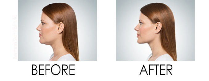 kybella for double chin before and after wellmedica reston va