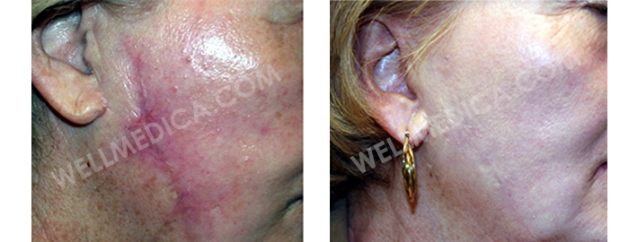 keloid scar before and after Virginia resston va