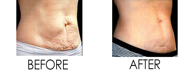 Stretch Marks and Cellulite Treatment Body Changes After Pregnancy Venus Freeze Reston, VA