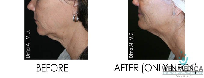 venus freeze and venus legacy for a double chin before and after reston wellmedica