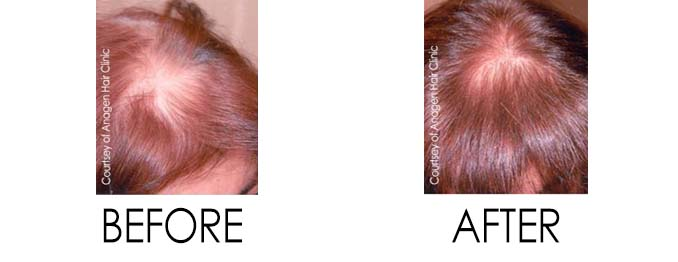 Hair Loss Treatment Before and After Body Changes After Pregnancy