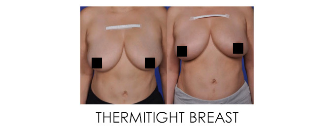 Sagging Breasts Before and After ThermiTight Breast Body Changes After Pregnancy