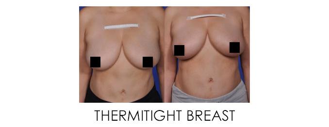 Non-Surgical Breast Lift for ThermiTight Breast Lollipop Lift Alternative Reston