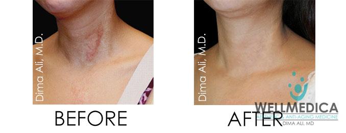 keloid scar treatment reston va