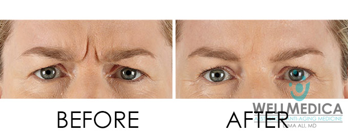 Xeomin Before and After Treatment Dr. Dima Ali Tysons DC Reston Great Falls