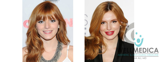 Bella Throne Lips Before and After celebrity lip fillers dr. dima ali wellmedica reston