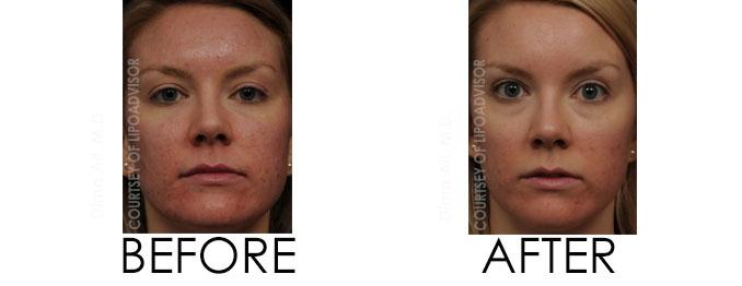 Fraxel before and after wellmedica near me reston va dima ali