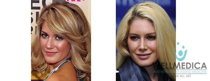 Heidi Montag Lips Before and After celebrity lip fillers wellmedica dr. dima ali reston