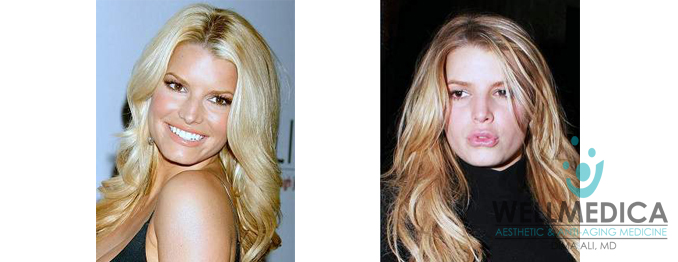 Jessica Simpson Lips Before and After celebrity lip fillers dima ali wellmedica reston