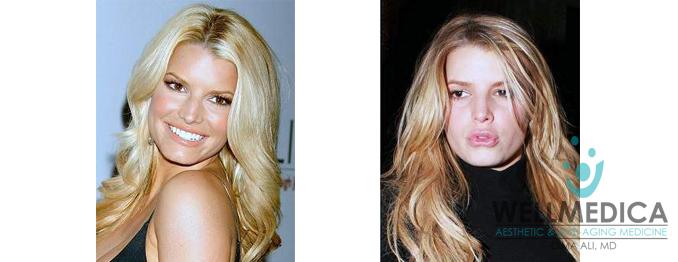 Jessica Simpson Lips Before and After celebrity lip fillers dima ali wellmedica reston