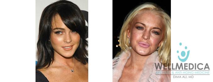 Lindsay Lohan Lips Before and After celebrity lip fillers dima ali md reston wellmedica