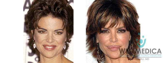 Lisa Rinna Lips Before and After Celebrity Lip Fillers WellMedica Dr. Dima Ali Reston