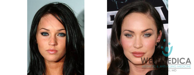 Megan Fox Lips Before and After celebrity lip fillers wellmedica dr. dima ali reston va