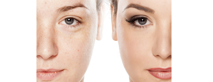 Permanent Makeup Before and After Treatment Reston Herndon Tysons Dr. Dima Ali