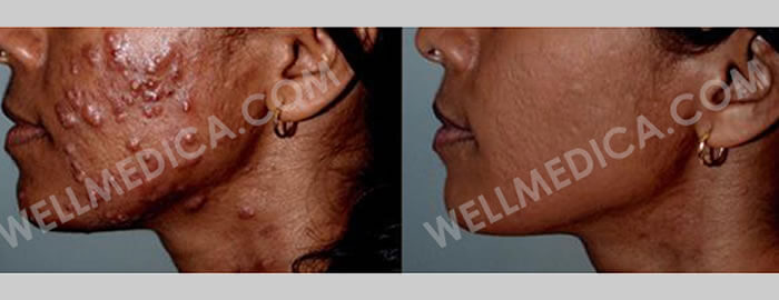About WellMedica Anti-Aging, skin treatments in D.C., Reston, Ashburn, McLean, Tysons corner, Fairfax, Virginia