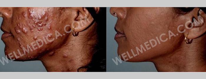 About WellMedica Anti-Aging, skin treatments in D.C., Reston, Ashburn, McLean, Tysons corner, Fairfax, Virginia