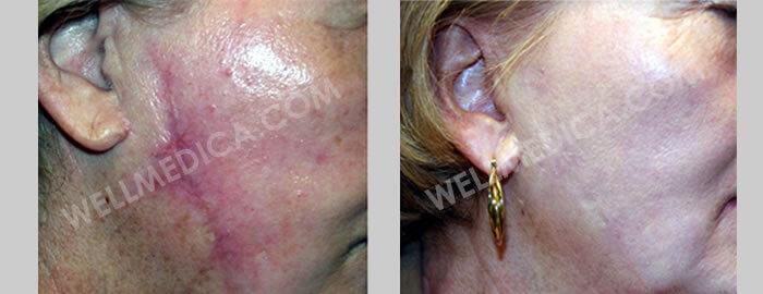 Anti-Aging treatment, skin treatments in D.C., Reston, Ashburn, McLean, Tysons corner, Fairfax, Virginia