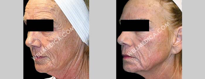 WellMedica Medical spa, skin treatments in D.C., Reston, Ashburn, McLean, Tysons corner, Fairfax, Virginia
