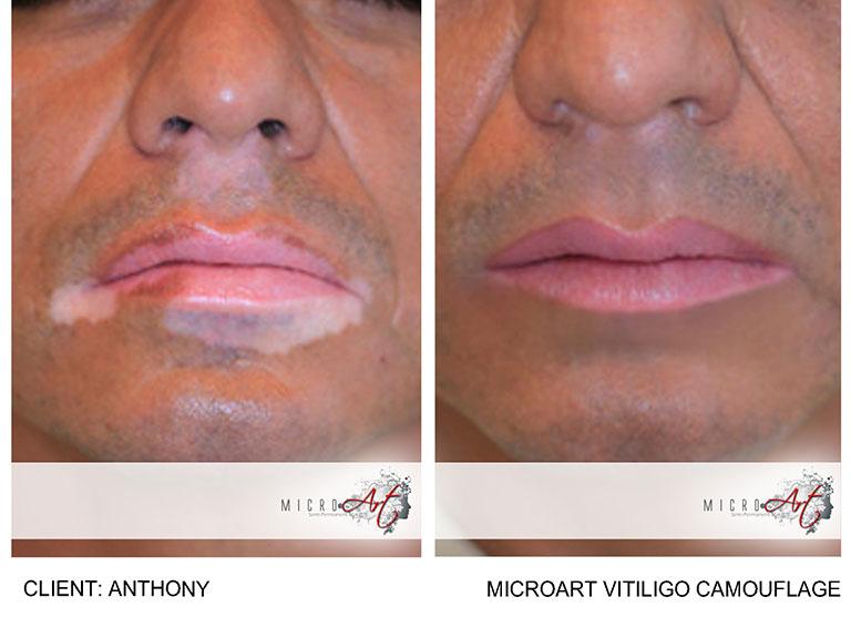 vitiligo permanent makeup before and after Washington DC Dima Ali