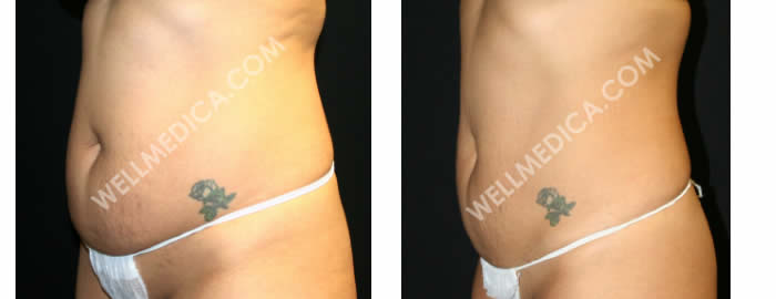UltraShape-Power-before-and-after