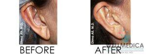 Ear lobe rejuvenation WellMEIDCA aesthetic dr. dima, m.d.