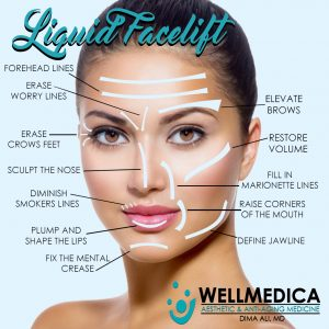 Liquid Facelift WellMedica