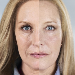 Liquid Facelift Reston VA Dermal Fillers