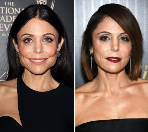 botox for facial slimming bethenny frankel