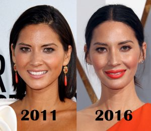 botox for facial slimming olivia munn before and after