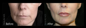 Restylane fillers
